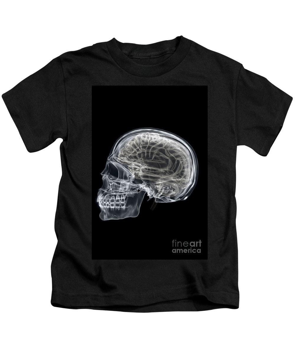Frontal Lobe Kids T-Shirt featuring the photograph The Skull And Brain by Science Picture Co