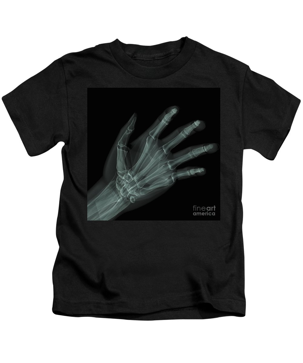 Middle Phalange Kids T-Shirt featuring the photograph Bones Of The Hand by Science Picture Co