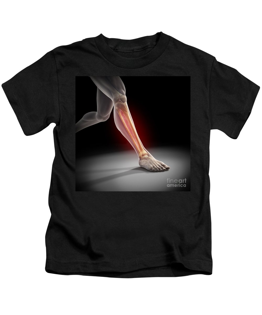 Transparency Kids T-Shirt featuring the photograph Medial Tibial Stress Syndrome by Science Picture Co