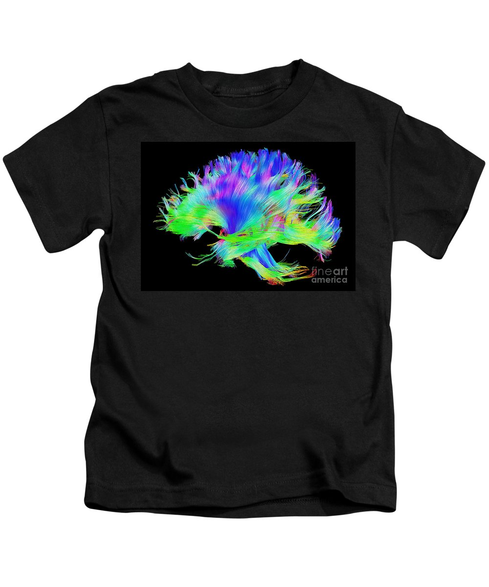 Brain Mri Kids T-Shirt featuring the photograph Fiber Tracts Of The Brain, Dti by Living Art Enterprises