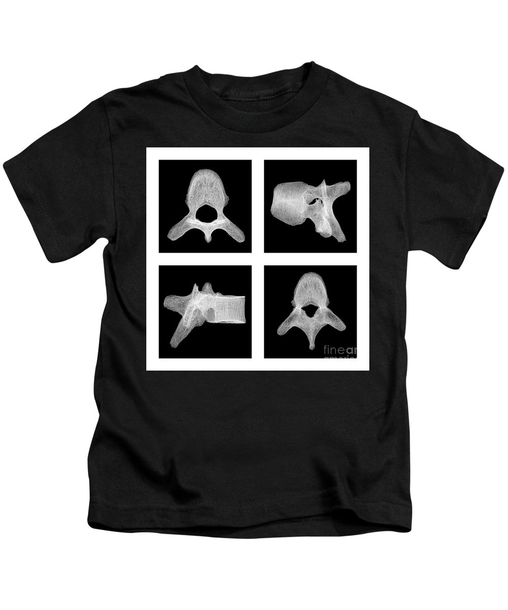 Science Kids T-Shirt featuring the photograph Human Vertebra T5, X-ray by Ted Kinsman