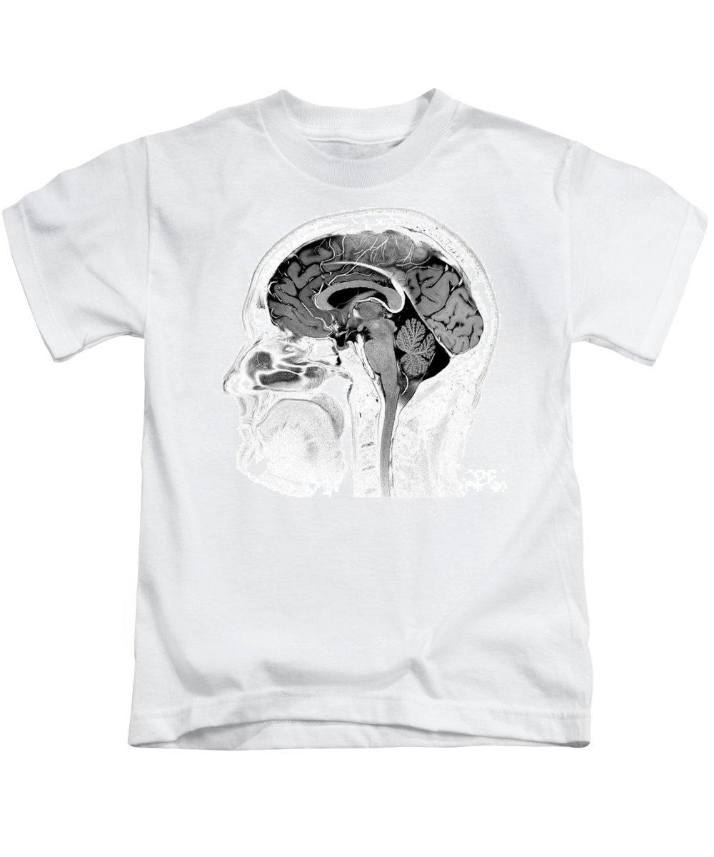 Brain Mri Kids T-Shirt featuring the photograph Normal Brain, Mri by Living Art Enterprises