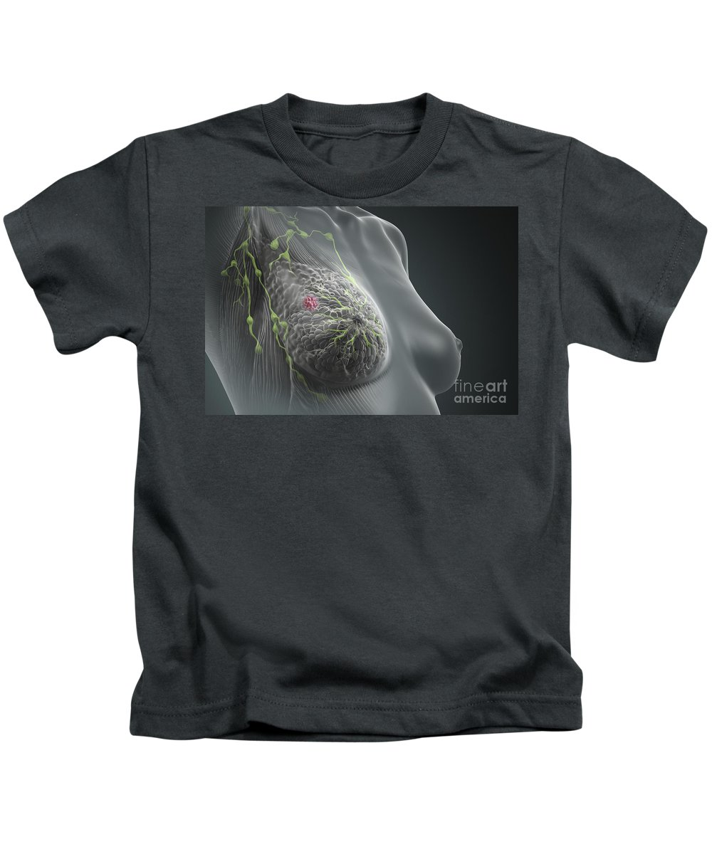 Close-up Kids T-Shirt featuring the photograph Breast Cancer by Science Picture Co