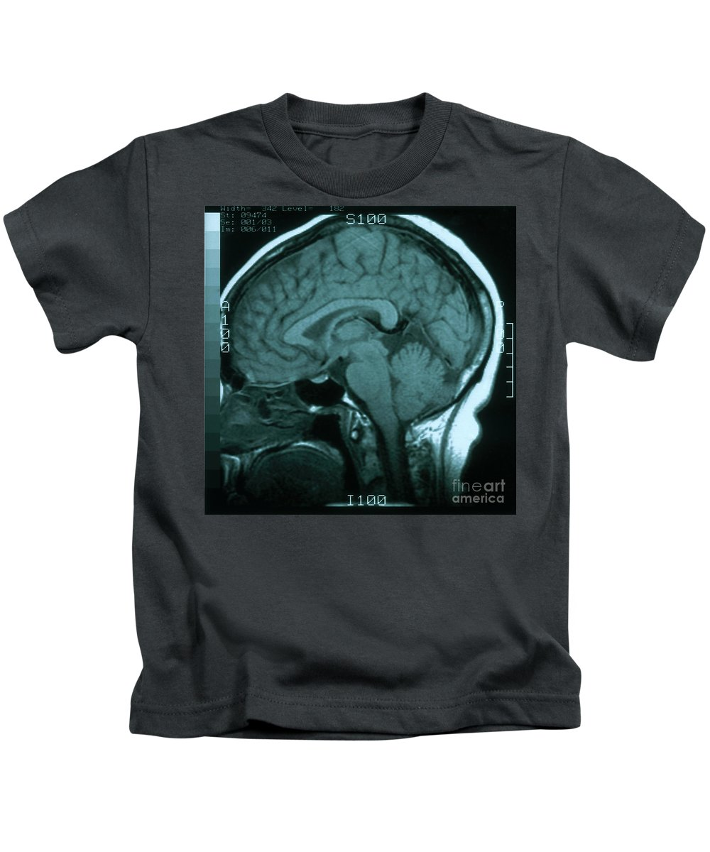 Brainstem Photographs Kids T-Shirts
