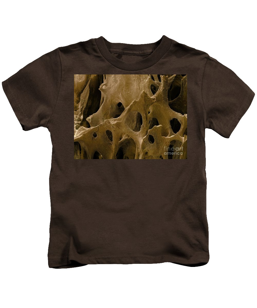 Micrography Kids T-Shirt featuring the photograph Human Bone, Sem by Ted Kinsman