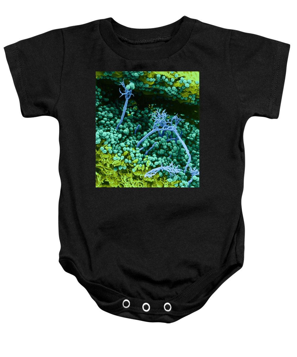 Science Baby Onesie featuring the photograph Surface Of Leaf With Fungal Infections by Biophoto Associates