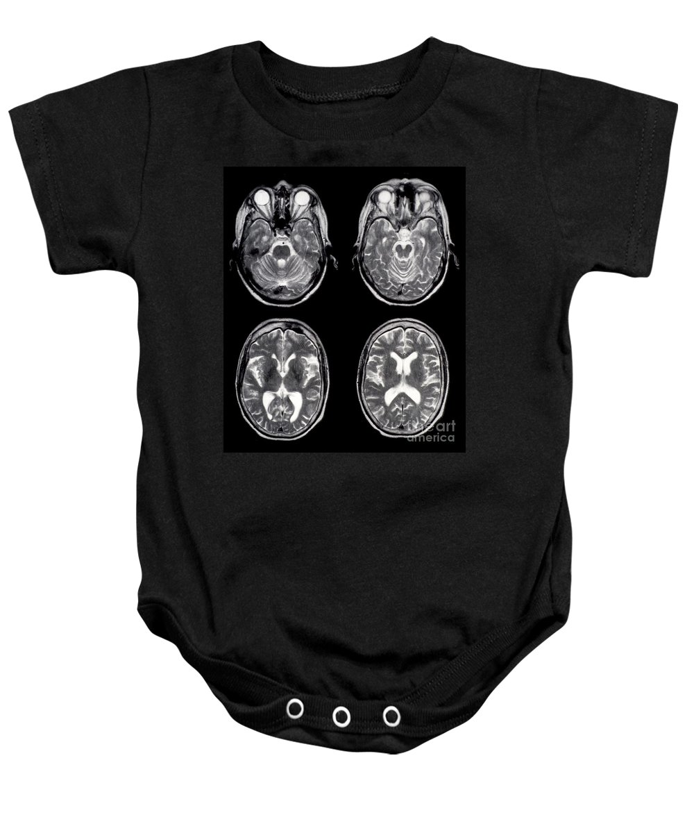 Brainstem Baby Onesies