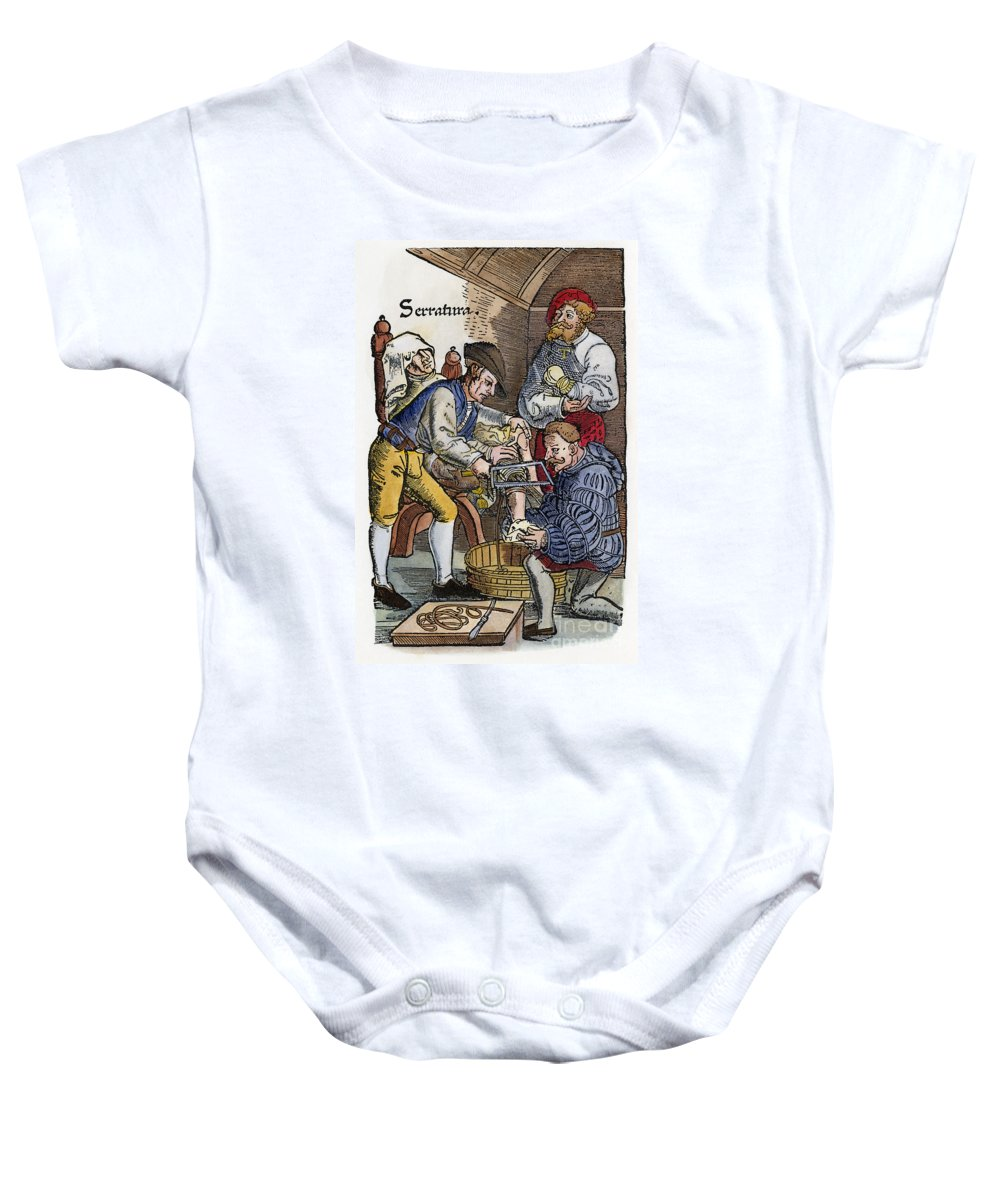 1540 Baby Onesie featuring the photograph Amputation, 1540 by Granger