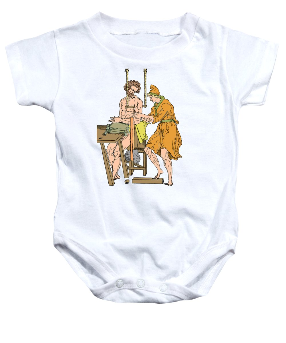Science Baby Onesie featuring the photograph Roman Devices For Setting Fractures by Science Source