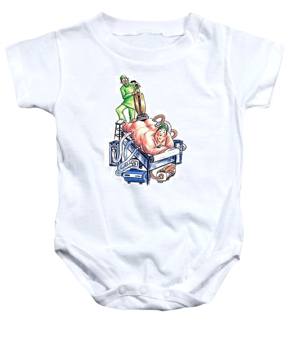 Humor Get Even Baby Onesie featuring the drawing Extreme Lipo by Bruce Lennon