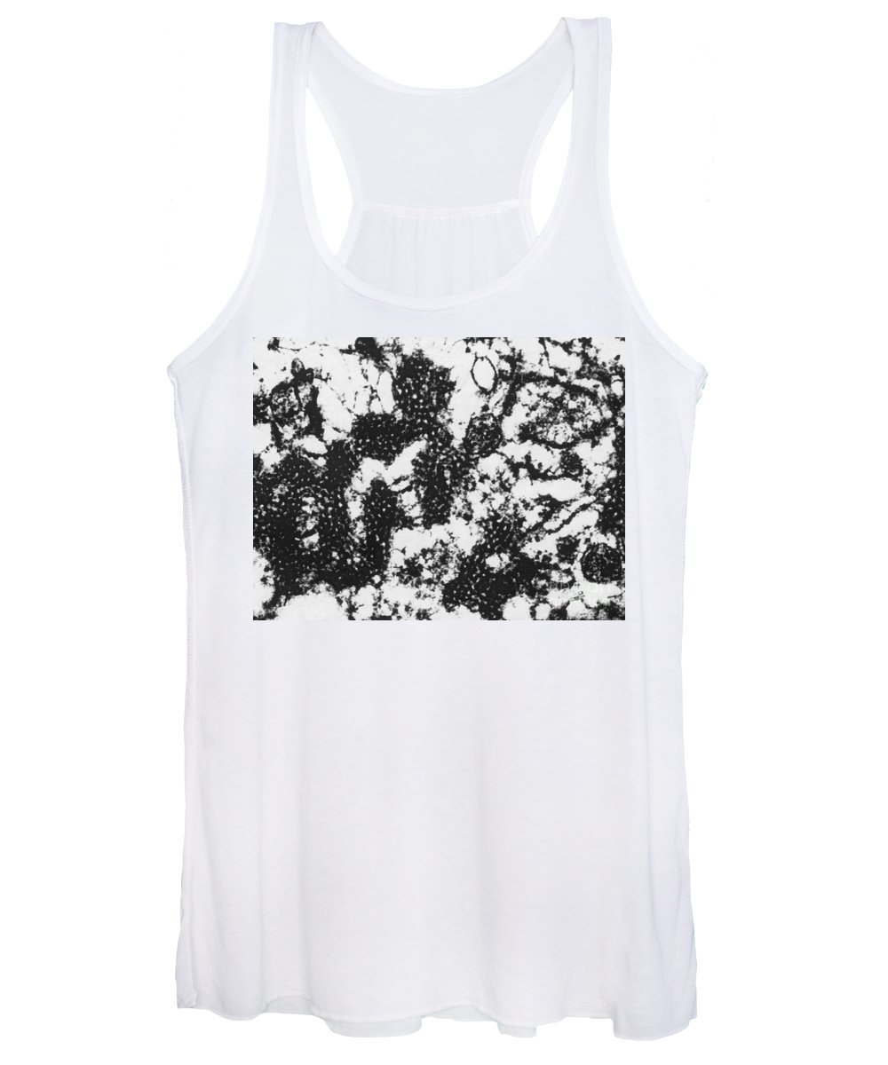 Foot-and-mouth Disease Virus Women's Tank Tops