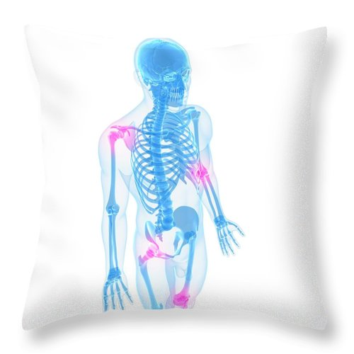 White Background Throw Pillow featuring the digital art Joint Pain, Conceptual Artwork by Sciepro
