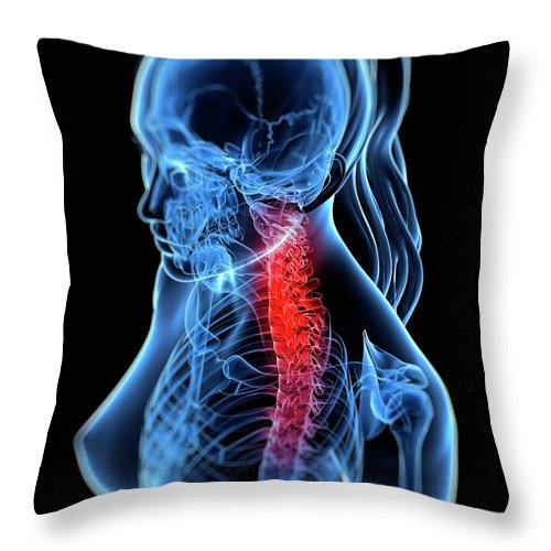 Anatomy Throw Pillow featuring the digital art Back Pain, Conceptual Artwork by Sciepro