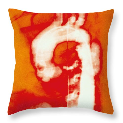 Biology Throw Pillow featuring the photograph Aortic Aneurysm by Lunagrafix