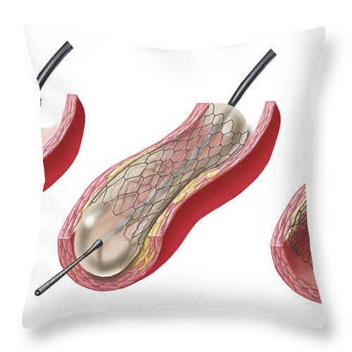 Horizontal Throw Pillow featuring the digital art Insertion Of Stent Into Atherosclerotic by TriFocal Communications