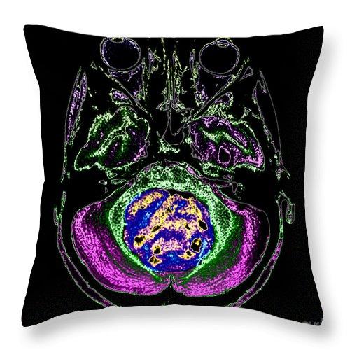 Mr Brain Throw Pillow featuring the photograph Medulloblastoma, Mri by Living Art Enterprises