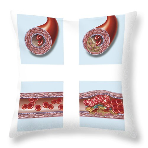Square Image Throw Pillow featuring the digital art Normal Artery Compared To Plaque by TriFocal Communications