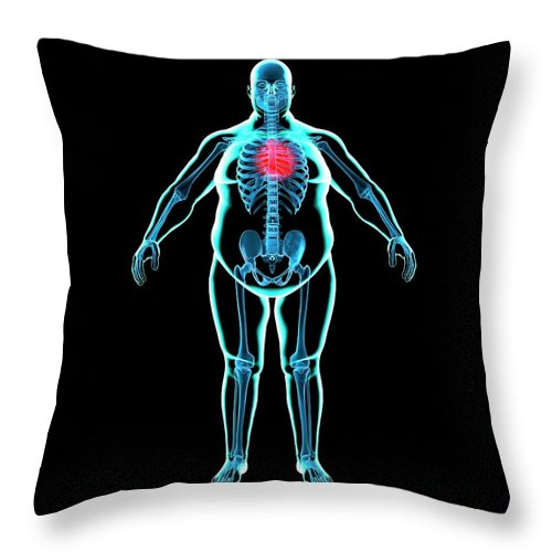 Risk Throw Pillow featuring the digital art Obese Mans Heart, Artwork by Science Photo Library - Roger Harris