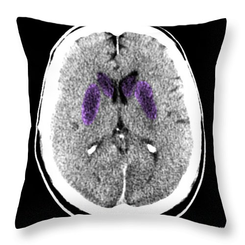 Ct After Cardiac Arrest Throw Pillow featuring the photograph Brain Of A Cardiac Arrest Victim by Medical Body Scans