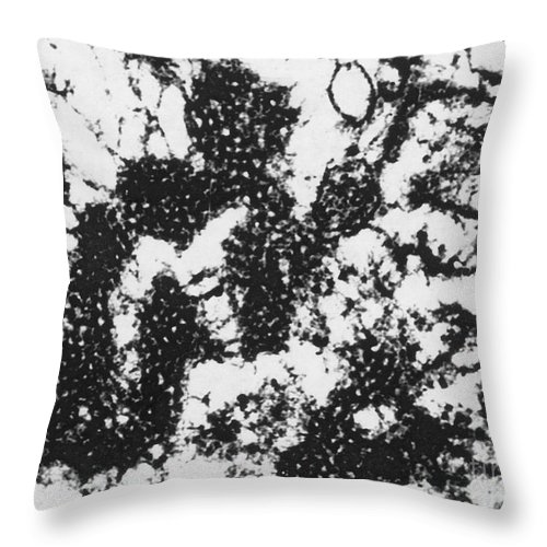 Science Throw Pillow featuring the photograph Foot And Mouth Disease by Science Source