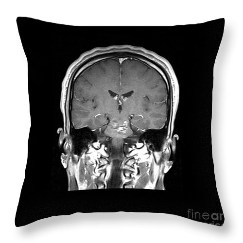 Magnetic Resonance Imaging Throw Pillow featuring the photograph Mri Brainstem Cavernous Malformations by Medical Body Scans