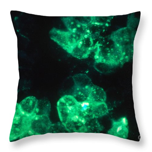 Micrograph Throw Pillow featuring the photograph Rubeola Measles, Tem by ASM/Science Source