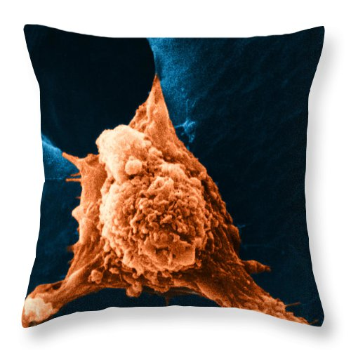 Sem Throw Pillow featuring the photograph Metastasis by Science Source
