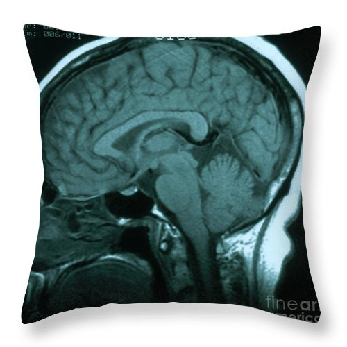 Brain Throw Pillow featuring the photograph Mri Of Normal Brain by Science Source