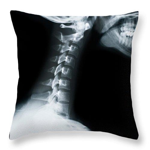 Human Vertebra Throw Pillow featuring the photograph X Ray Of Neck Vertebrae by Anthony Bradshaw