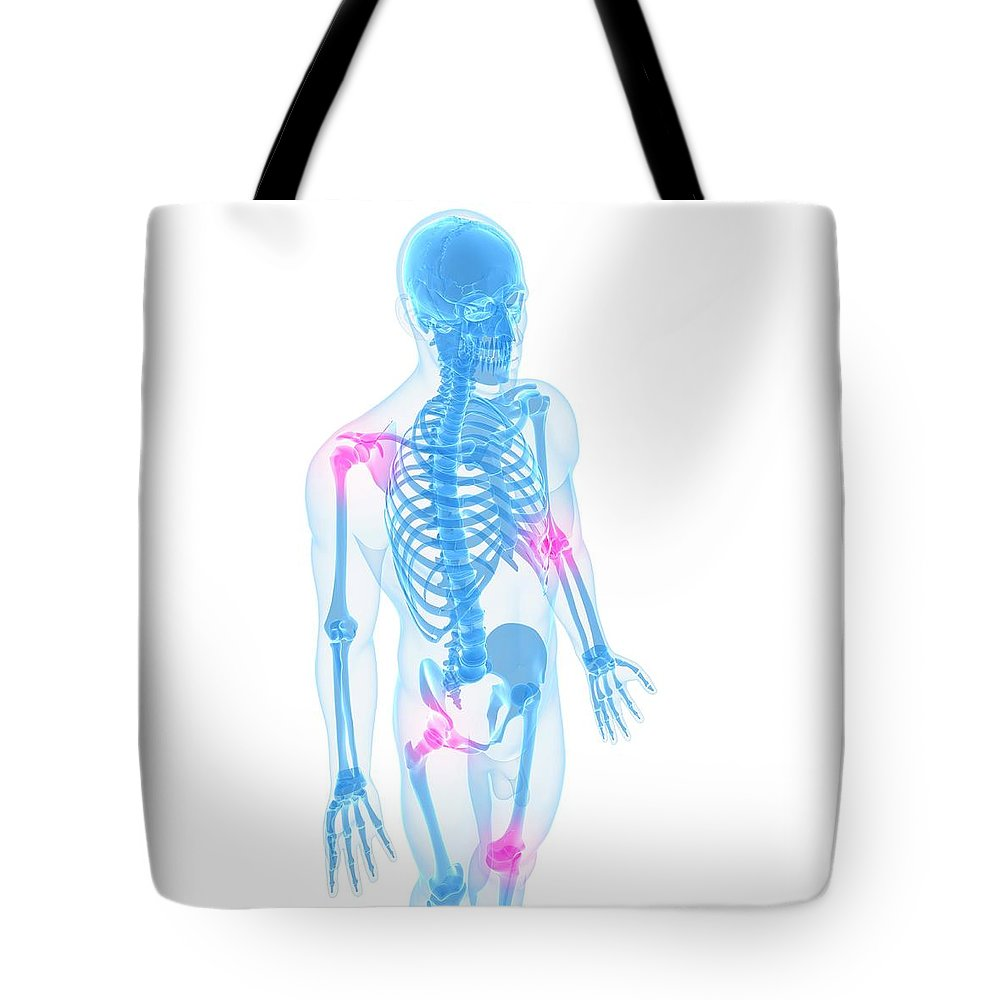 White Background Tote Bag featuring the digital art Joint Pain, Conceptual Artwork by Sciepro