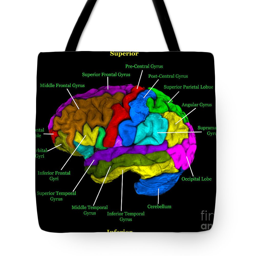 Labeled Mri Of Normal Brain Tote Bag for Sale by Living Art Enterprises