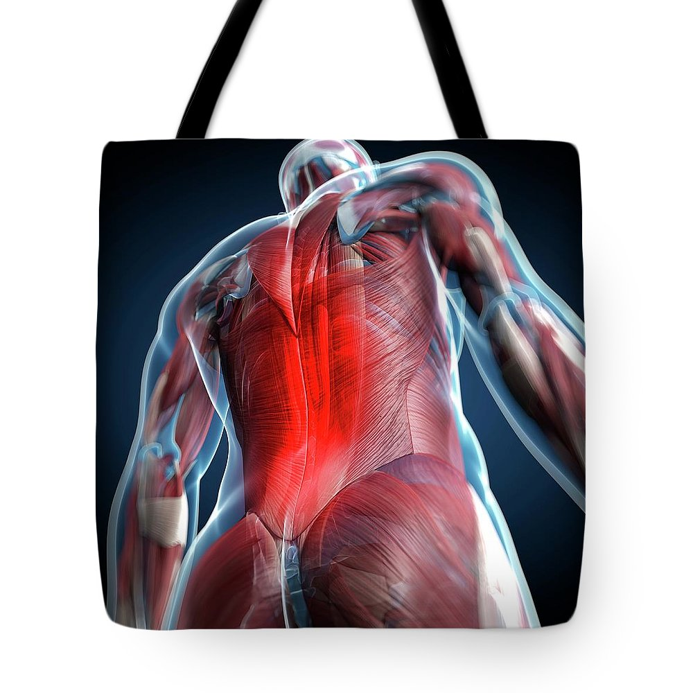 Physiology Tote Bag featuring the digital art Back Pain, Conceptual Artwork by Science Photo Library - Sciepro