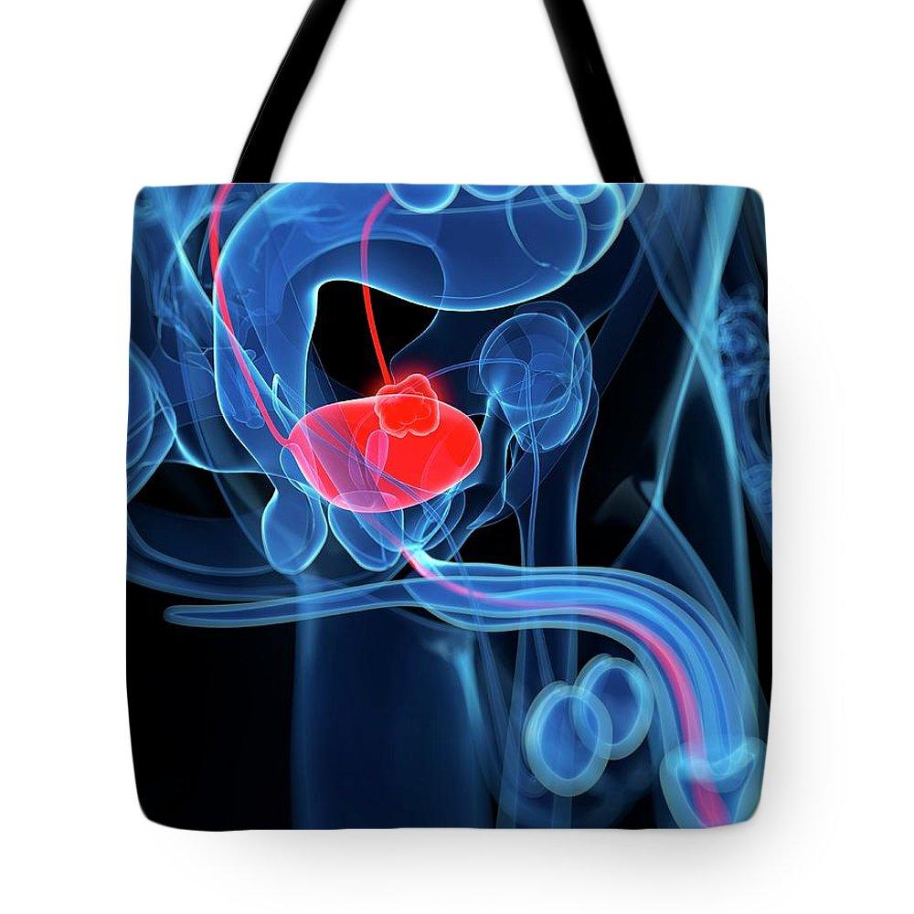 Bladder Cancer Tote Bag featuring the digital art Bladder Cancer, Artwork by Sciepro