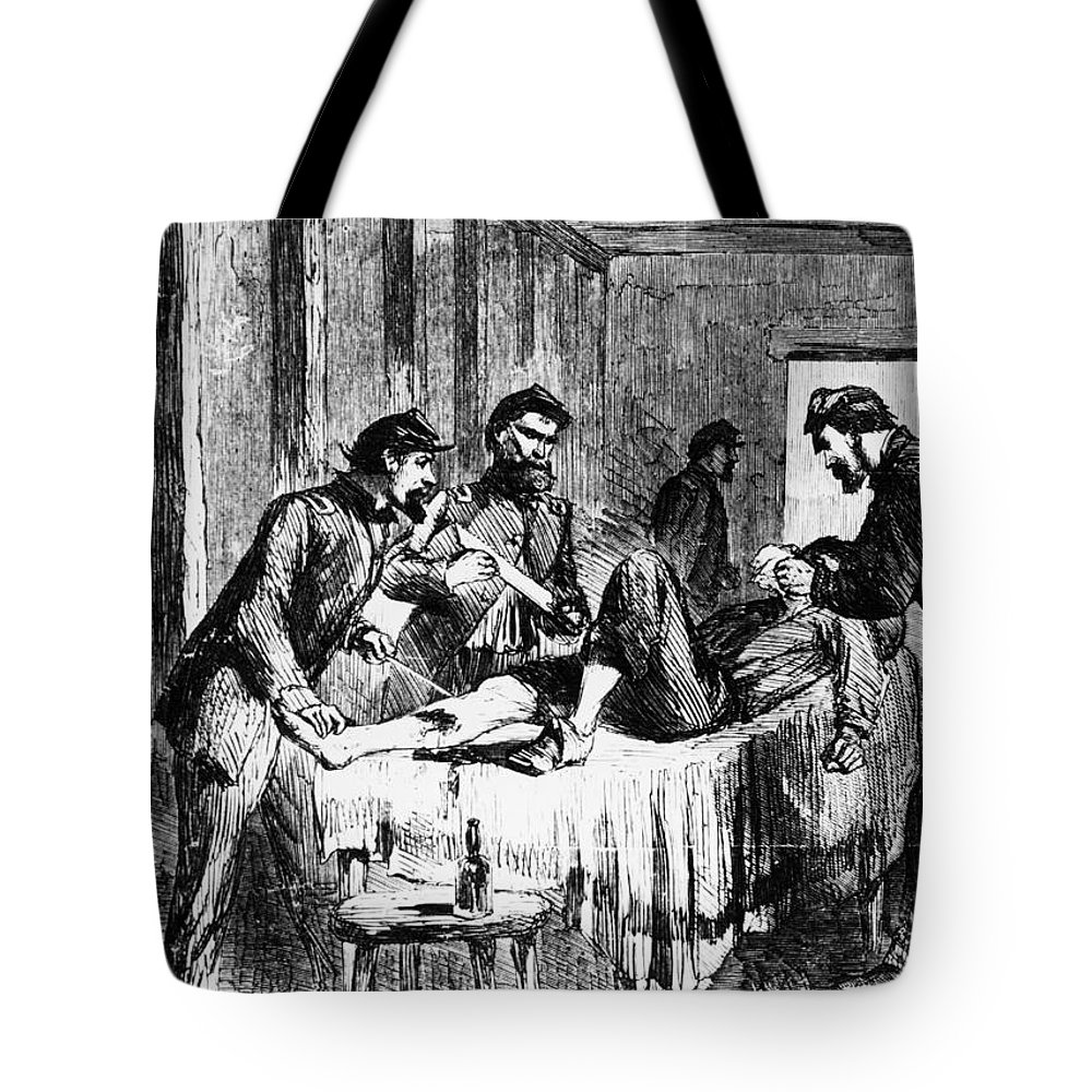 1860s Tote Bag featuring the photograph Civil War: Amputation by Granger
