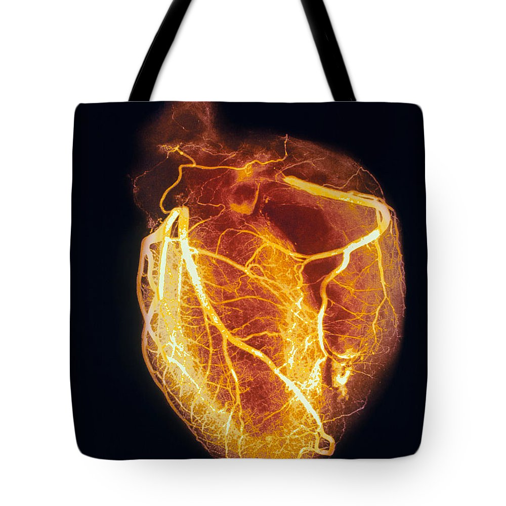 Angiogram Lifestyle Products