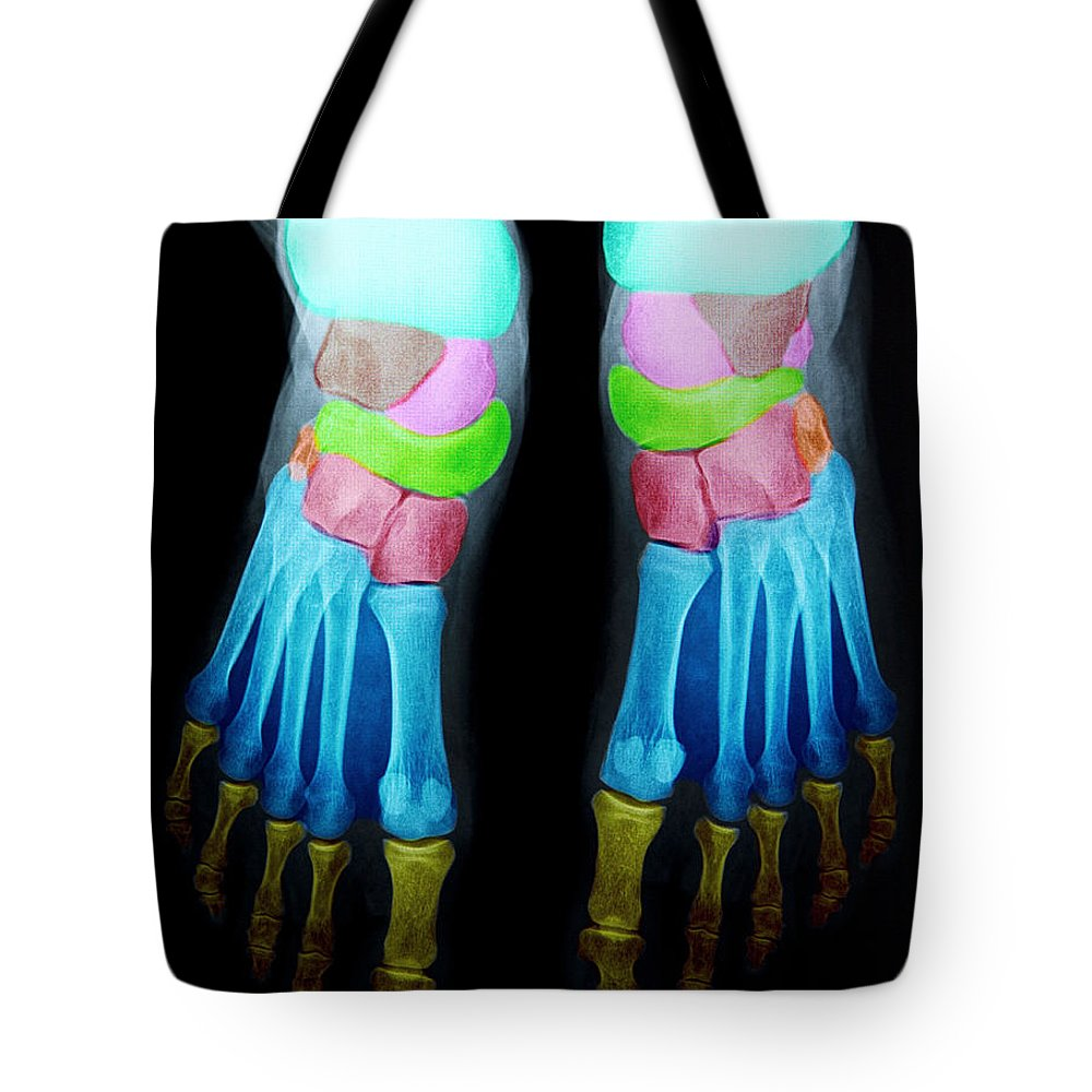 About Fifty Tote Bag featuring the photograph Foot X-ray by Warrick G