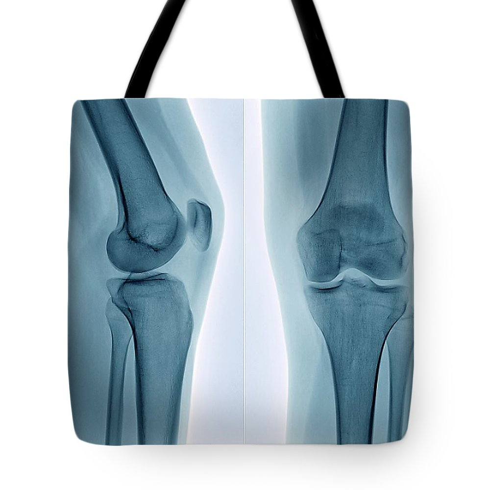 White Background Tote Bag featuring the photograph Healthy Knee, X-ray by Zephyr