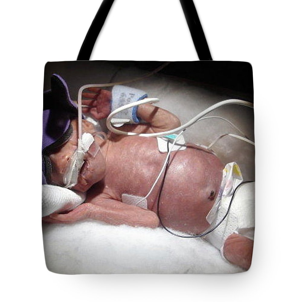 Nicu Tote Bag featuring the photograph Nicu Miracle Baby by Jackie Austin