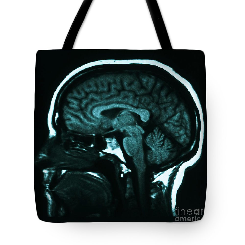 Brain Tote Bag featuring the photograph Mri Of Normal Brain by Science Source