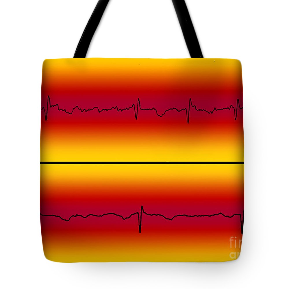 Atrial Flutter And Normal Heart Beat Tote Bag
