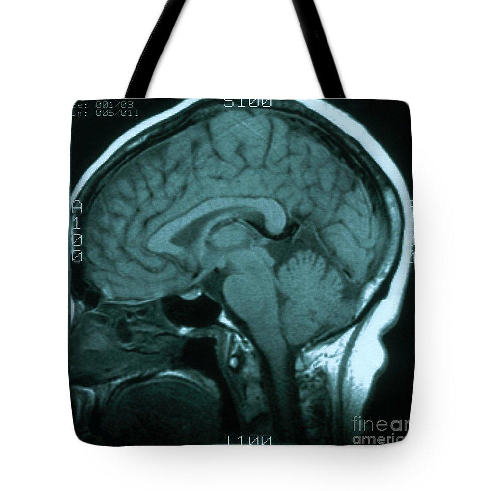 Brainstem Lifestyle Products
