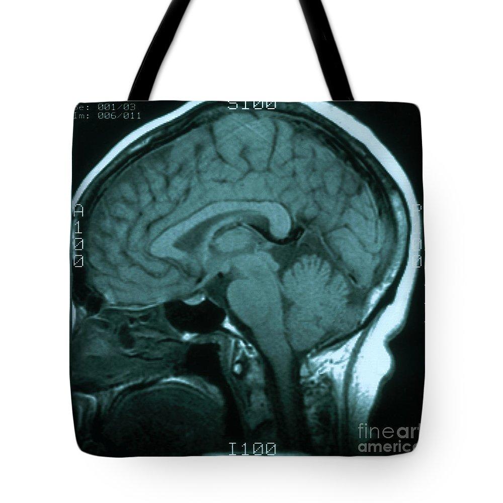 Magnetic Resonance Image Lifestyle Products