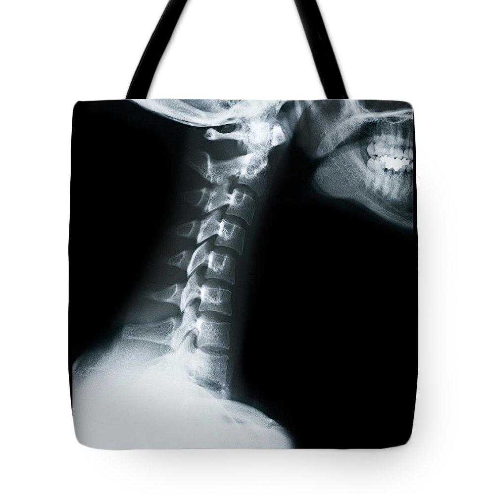 Human Vertebra Tote Bag featuring the photograph X Ray Of Neck Vertebrae by Anthony Bradshaw