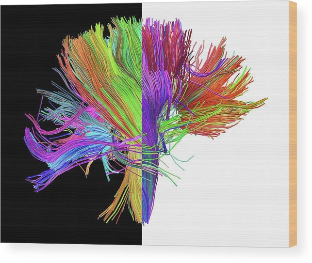 Brain Scan Wood Print featuring the photograph White Matter Fibres Of The Human Brain by Alfred Pasieka