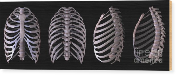 Anatomical Model Wood Print featuring the photograph Multiple View Of The Rib Cage by Science Picture Co