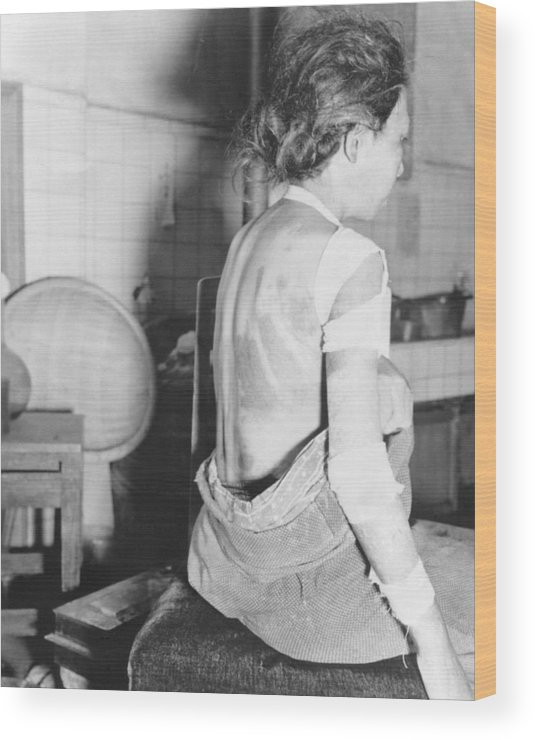History Wood Print featuring the photograph Japanese Female Victim Of Atom Bomb by Everett