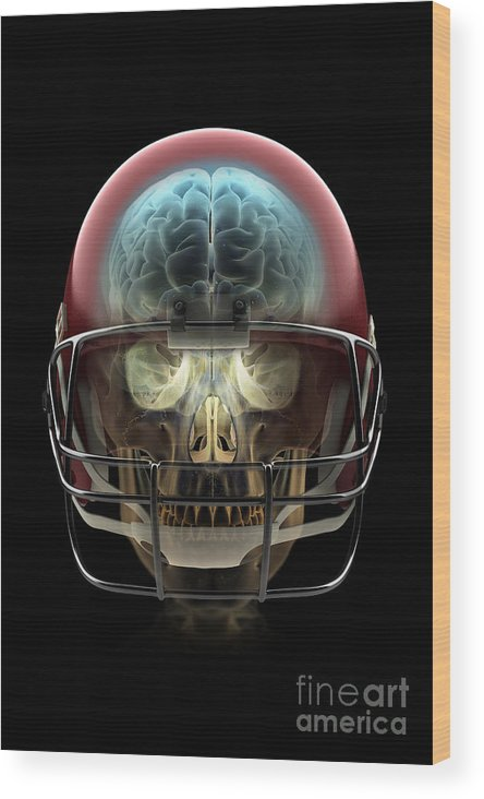 Injure Wood Print featuring the photograph Brain Injury by Science Picture Co