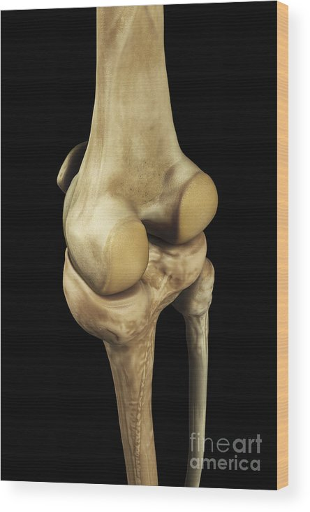 Anatomical Model Wood Print featuring the photograph Knee Bones Right by Science Picture Co