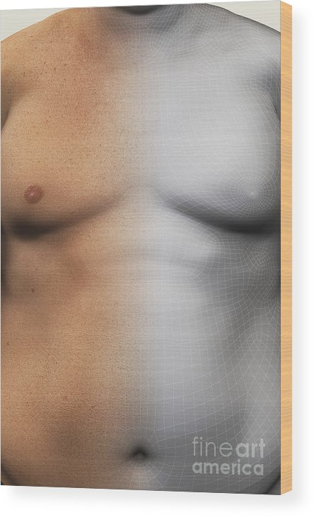 Biomedical Illustration Wood Print featuring the photograph Obesity by Science Picture Co