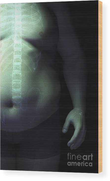 Abdominal Obesity Wood Print featuring the photograph Obesity by Science Picture Co